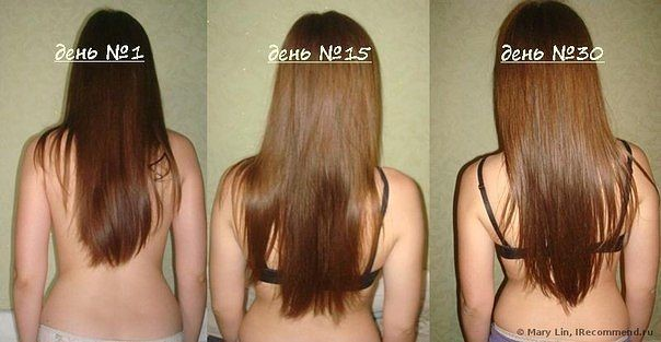 фото роста волос на голове
