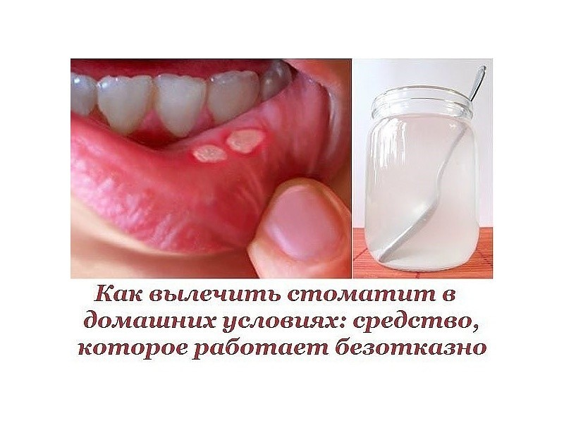 Как в домашних условиях вылечить стоматит у взрослых во рту