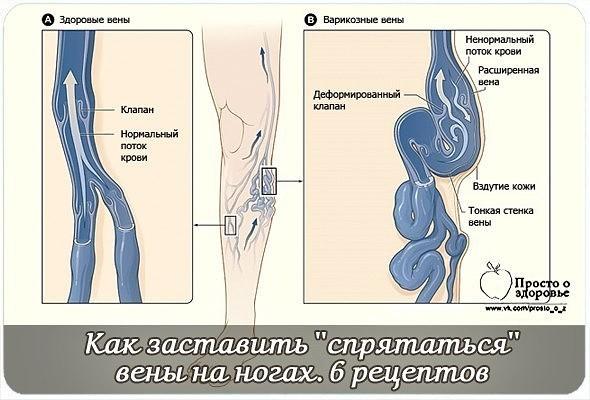 Влияние варикозного расширения вен на качество спермы