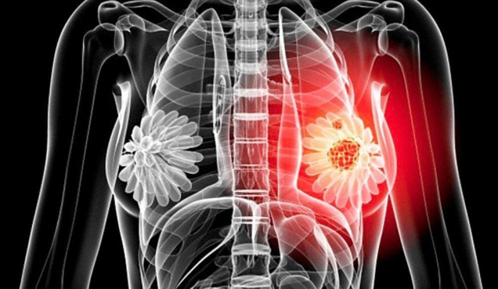 Отмечается повышенный риск образования этой опухоли у кровных родственников.