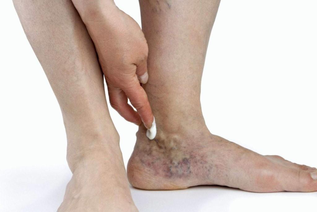 Боль В Мелких Суставах Ног
